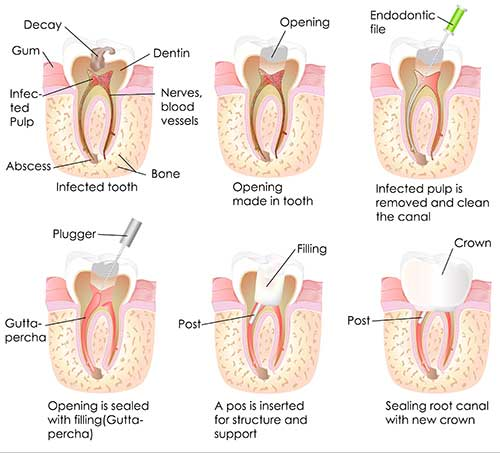 Root Canal Therapy in Pahrump