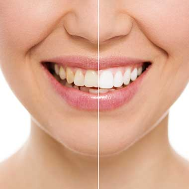 Teeth Whitening in Pahrump