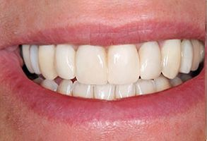 Pahrump Before and After Dental Crowns