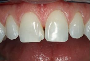 89048 Before and After Dental Implants